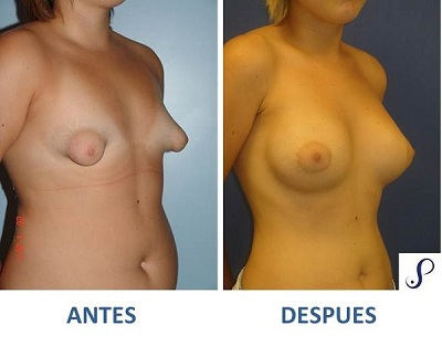 mamoplastia de aumento 1
