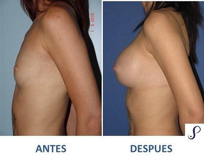 mamoplastia de aumento 2