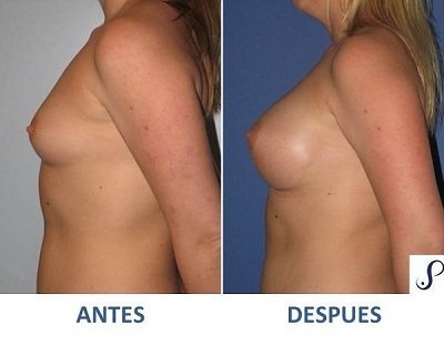 mamoplastia de aumento 3