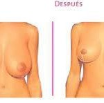 Reducción de mamas Dr. Joan Pallarès